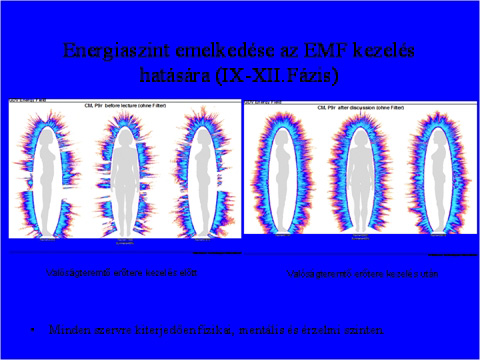 GDV - Az energiaszint emelkedése az EMF kezelés hatására
